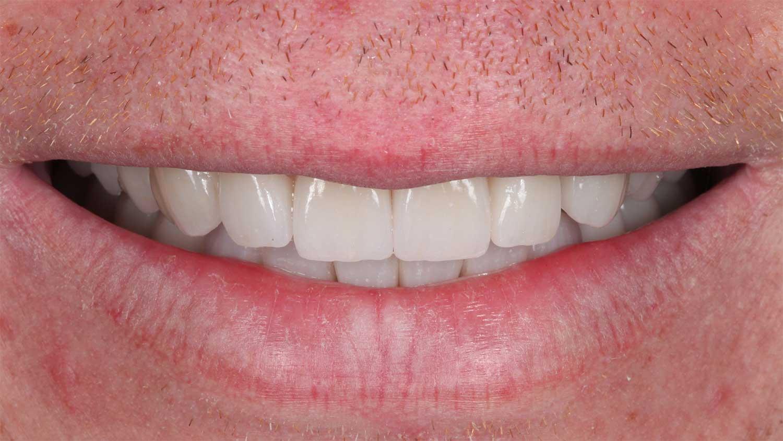 Zahnimplantate Palmerston Norden